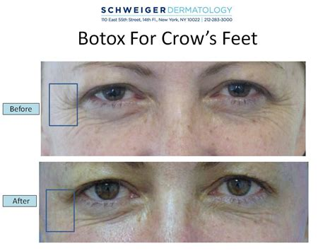 botox foot solution for wrinkled feet picture 10