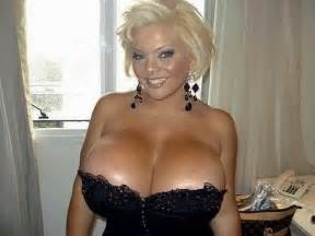woman with fff breast implants picture 2