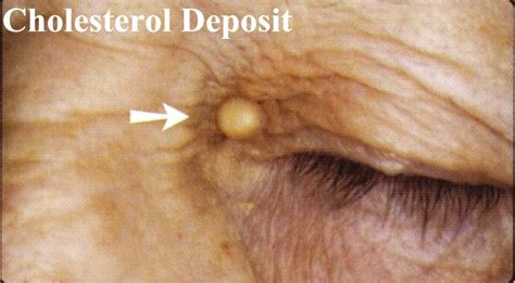 cholesterol deposits on skin picture 3