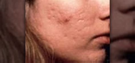 acne marks picture 13