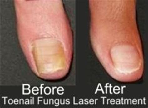 pinpoint laser toenail fungus picture 3