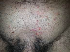 pregnancy yeast infection picture 1