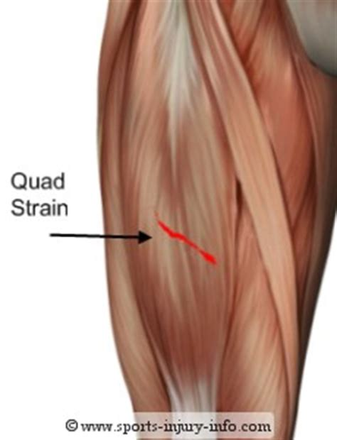 info on pull muscle picture 3