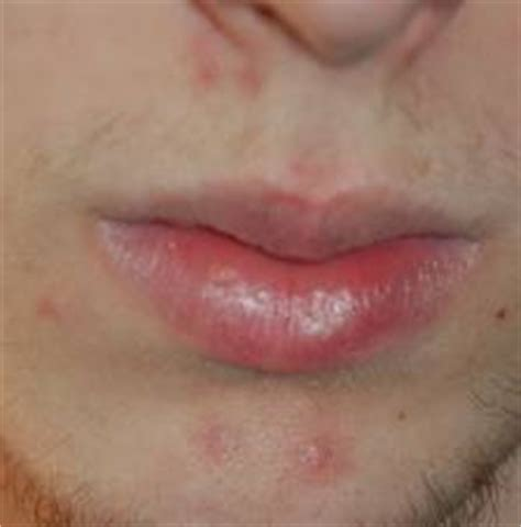 neosporin acne scars picture 3