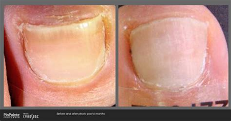 certified provider pinpointe footlaser maryland picture 9