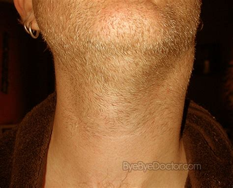 hives and swollen glands picture 5