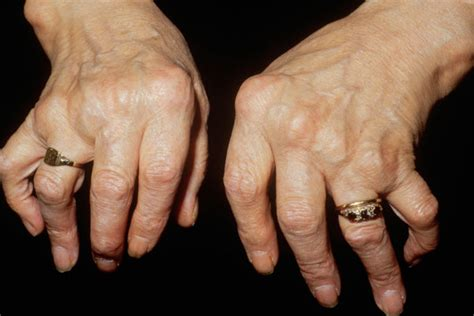 arthritis relief picture 11