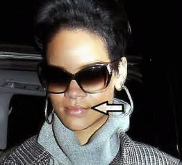 celebs with herpes 2013 picture 5