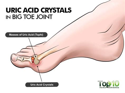 what causes uric acid picture 6