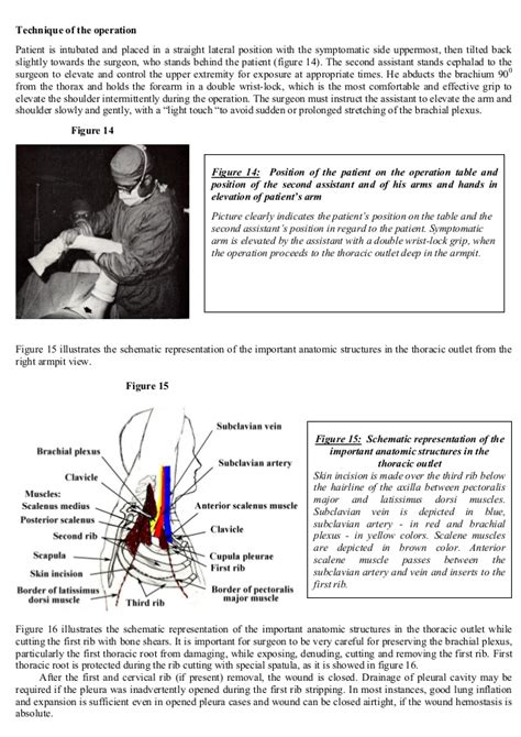birth control and thoracic outlet syndrome picture 12