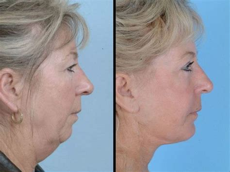 anti aging exercises for the face picture 5
