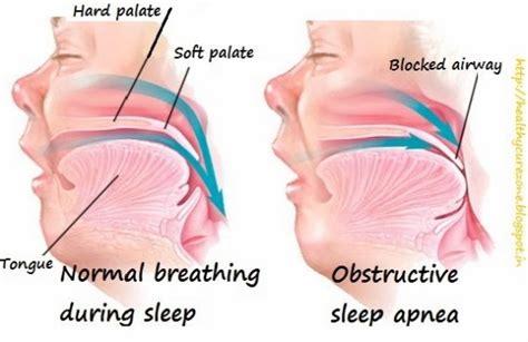 can sleep apnea lead to bad breath picture 6