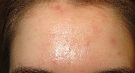 dry skin on 's forehead picture 2