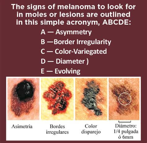 free skin cancer screenings fl picture 15
