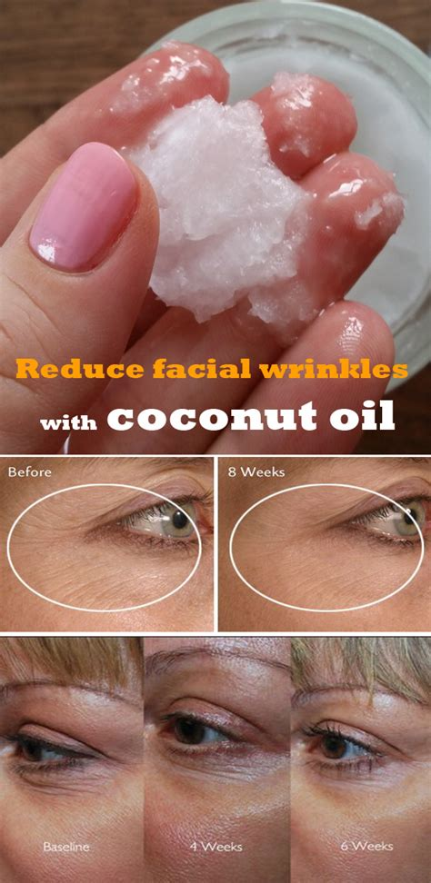 coconut oil on the penis for wrinkles picture 1