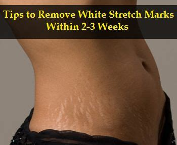 silver stretch mark picture 14