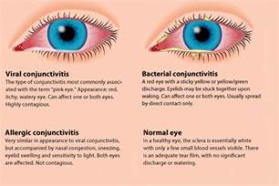 symptoms viral conjunctivitis bacterial conjunctivitis picture 1