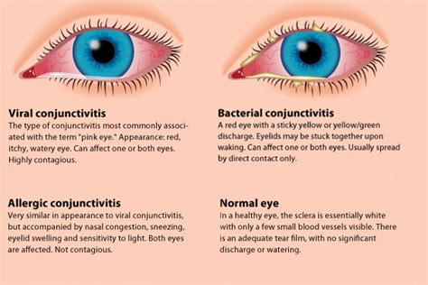 will bacterial pink eye reside picture 6
