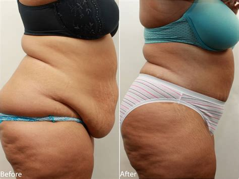can a tummy tuck get rid of stretch marks picture 10