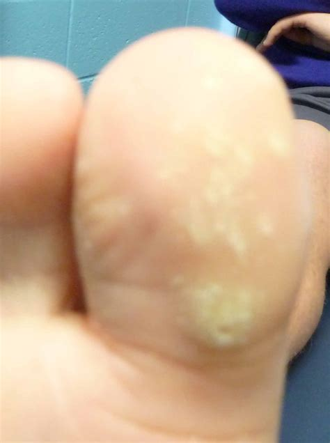medicine and plantar warts picture 19