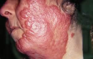 lupus skin picture 15