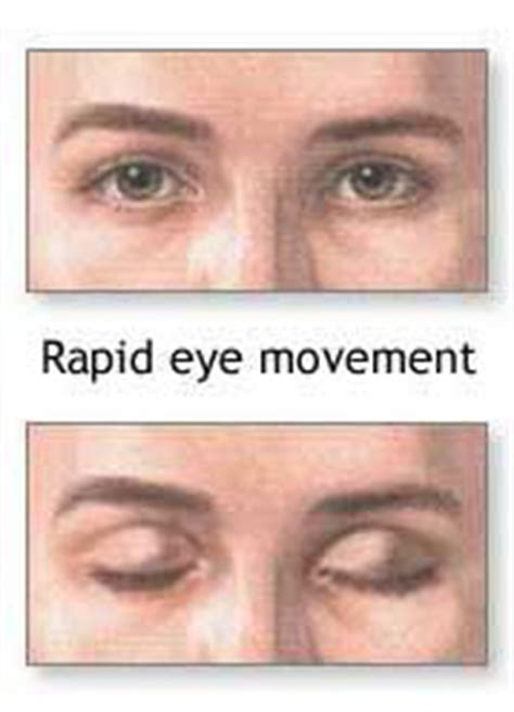 diagnosing causes of loss rapid eye movement in picture 4