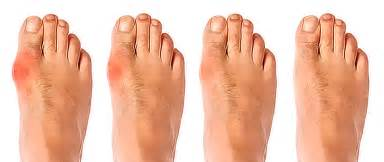 can they put you asleep for bunion surgery picture 3