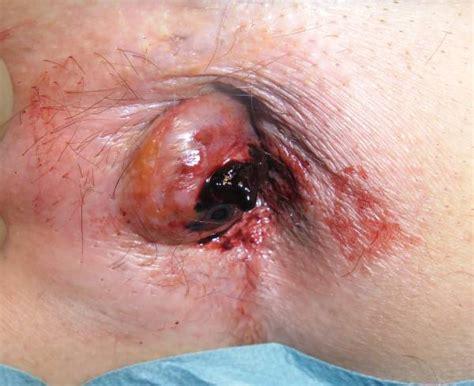 prolapsed hemorrhoid picture 13
