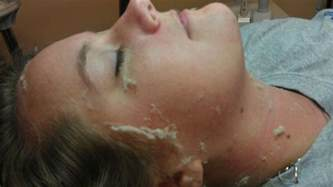 before and after pictures of dermaplaning picture 9