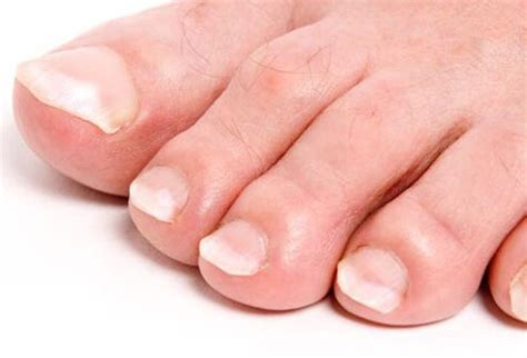 can thyroid cause feet problems picture 7