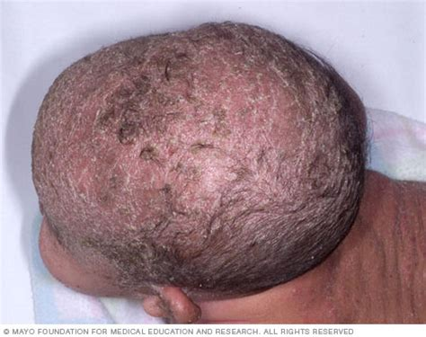 diagnosis of skin conditions picture 6