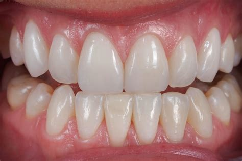 what is venner teeth picture 9