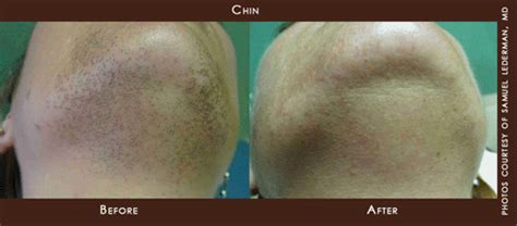 laser hair removal nj picture 7