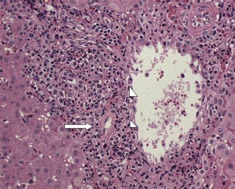 liver transplant rejection picture 9