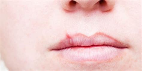 lip swelling face vasodilation rash finger swelling weight loss low fever picture 8