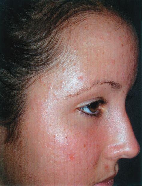 pityrosporum folliculitis treated with threelac? picture 10