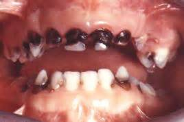 baby teeth problems picture 1