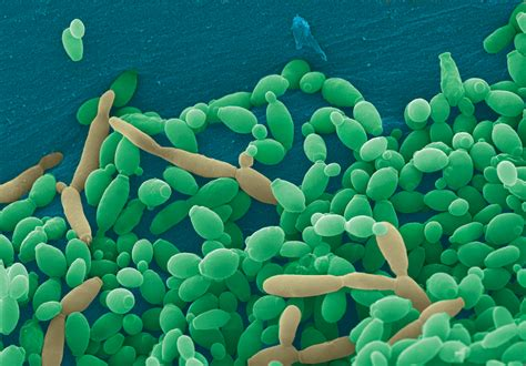 vampire fungus in stomach is it bacteria wiki picture 9