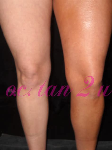 can mystic tan cover stretch marks picture 5