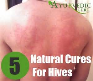what would cause hives to last over several picture 6