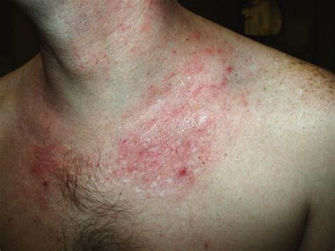 common skin infections irritations picture 5