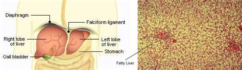 absence of gallstones when a fatty liver is picture 2