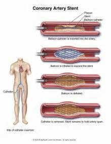 Cholesterol and plaque picture 14