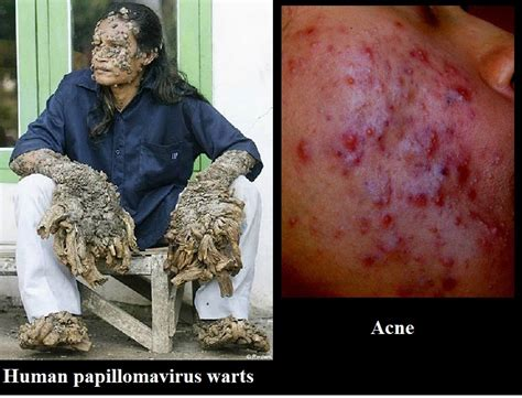 meaning of skin lesions picture 3