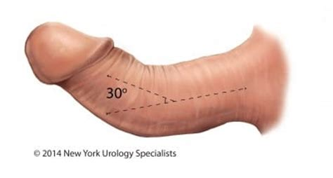 new york, penile fat injections by female dr. picture 5
