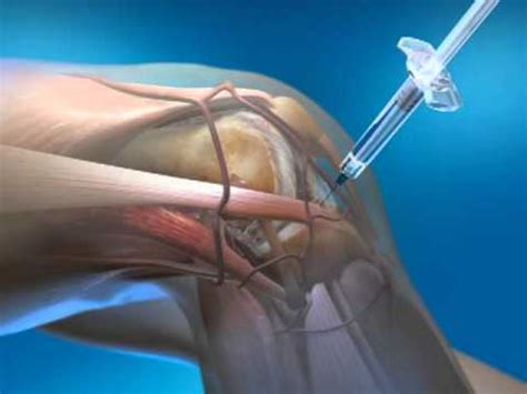 knee joint pain treatment nonsurgical picture 10