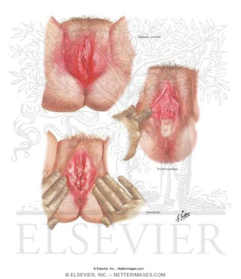 information on yeast infections of the vulva picture 1