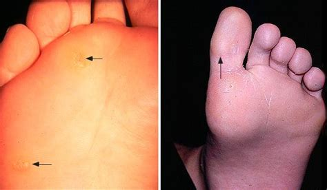 can plantar wart spread to genitals picture 8