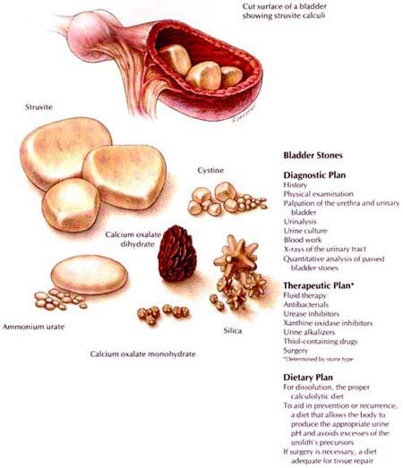 bladder stone symptoms picture 1