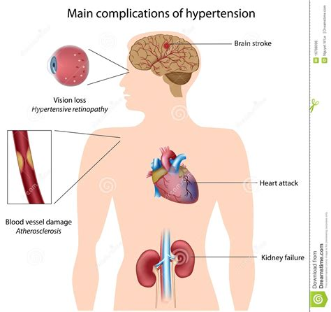 High blood pressure medicine side effects picture 4